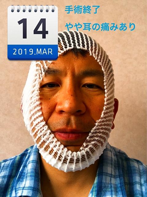 耳の手術で入院