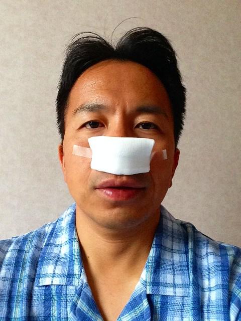 副鼻腔炎の手術
